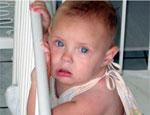 На Южном Урале отмечается подъем заболеваемости серозным менингитом